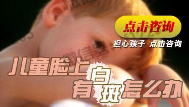 面部白斑初期应该如何治疗