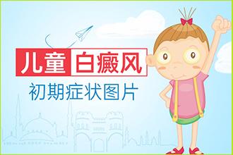 生活环境潮湿的孩子得了白癜风的症状有哪些
