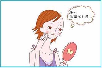 初期的白癜风都会有哪些症状