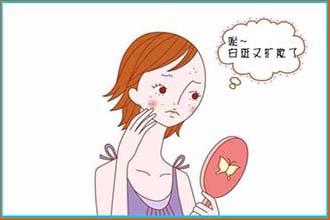 身上的白斑有哪些症状代表病情加重了