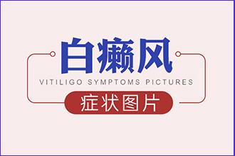 初期白癞风病发的症状是什么